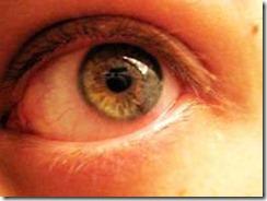 Alergias de Primavera: se acerca la conjuntivitis